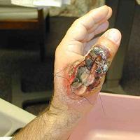 Лимфогранулематоз паховый